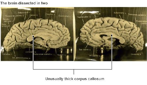 Những chuyện chưa kể về bộ não Einstein