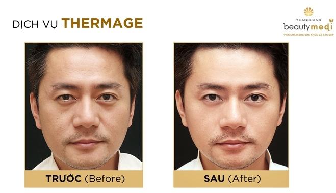 Doanh nhân Trương Minh Cường vẫn giữ được sự trẻ trung, phong độ ở tuổi 40 nhờ liệu pháp nâng cơ, săn chắc da Thermage tại Thanh Hằng Beauty Medi.