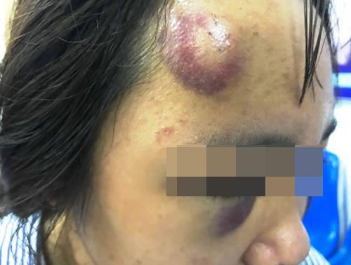 Nữ sinh bị đánh hội đồng bầm tím mặt. Ảnh: Minh Cương