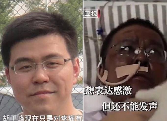 Bác sĩ Hu trước và sau khi nhiễm nCoV. Ảnh: Pear Video, Beịing Satellite TV