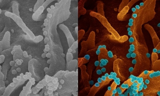 Kính hiển vi chụp ảnh tế bào sắp chết giải phóng các hạt virus mới. Ảnh: NIH.