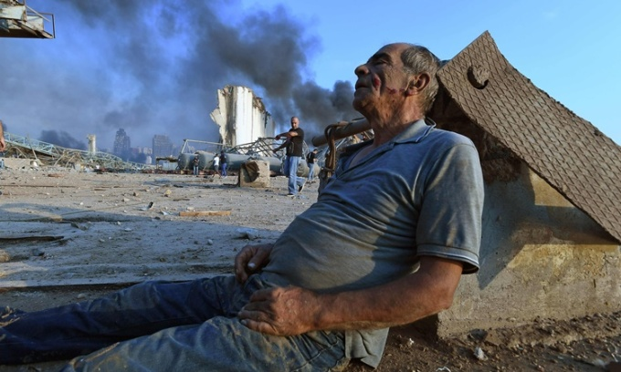 Người đàn ông ngồi chờ trợ giúp sau khi bị thương trong vụ nổ tại cảng Beirut ngày 4/8. Ảnh: AFP.