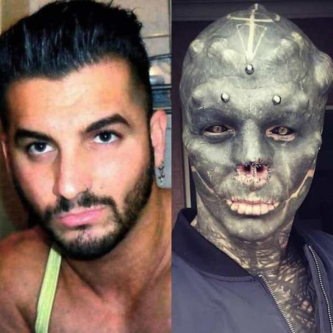 Anthony Loffredo trước (trái) và sau (phải) phẫu thuật cắt mũi. Ảnh: The Black Alien Project/Instagram