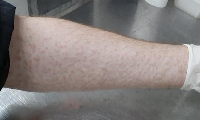 Cánh tay của Perran Stott-Ross sau một ngày bị muỗi đốt. Ảnh: Perran Stott-Ross.