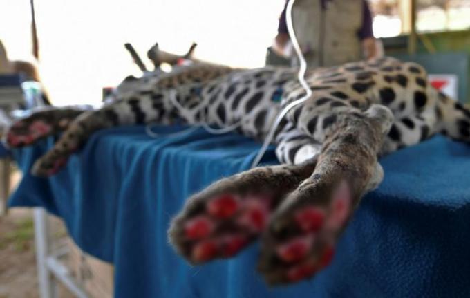 Những vết bỏng ở bàn chân của Amanaci ăn đến tận xương. Ảnh: AFP.