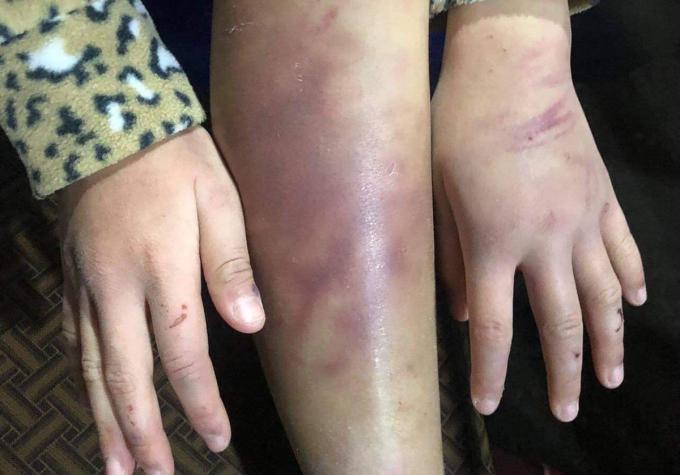 Hình ảnh bé gái tím tái khắp người vì bị đánh. Ảnh: Gia đình cung cấp.