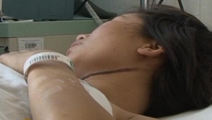 Cổ nạn nhân có vết siết bằng dây thừng sâu. Ảnh: CCTV.