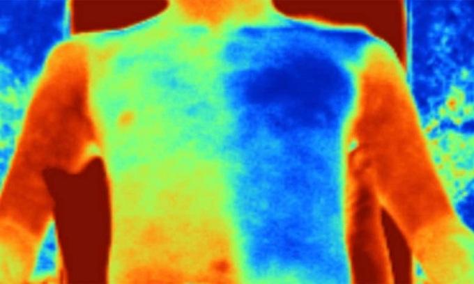 Công nghệ được sử dụng trong nhiều bệnh viện như chùm điện tử để tiêu diệt virus và phân hủy chất gây ô nhiễm độc hại trong rác thải.  Hệ thống chiếu chùm điện tử để xử lý chất thải y tế. Ảnh: CGTN. Hệ thống chiếu chùm điện tử để xử lý chất thải