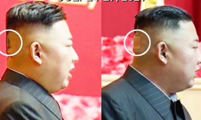 Miếng băng vết thương lạ trên đầu lãnh đạo Triều Tiên Kim Jong-un cuối tháng trước. Ảnh: KCTV.