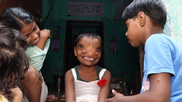 Trẻ nhỏ trong làng tập trung tới nhà bé Lakshimi (giữa) tại bang Uttar Pradesh, miền bắc Ấn Độ. Ảnh: Jam Press.